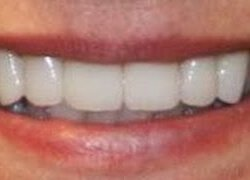An example of the difference Central Point cosmetic dentistry can make