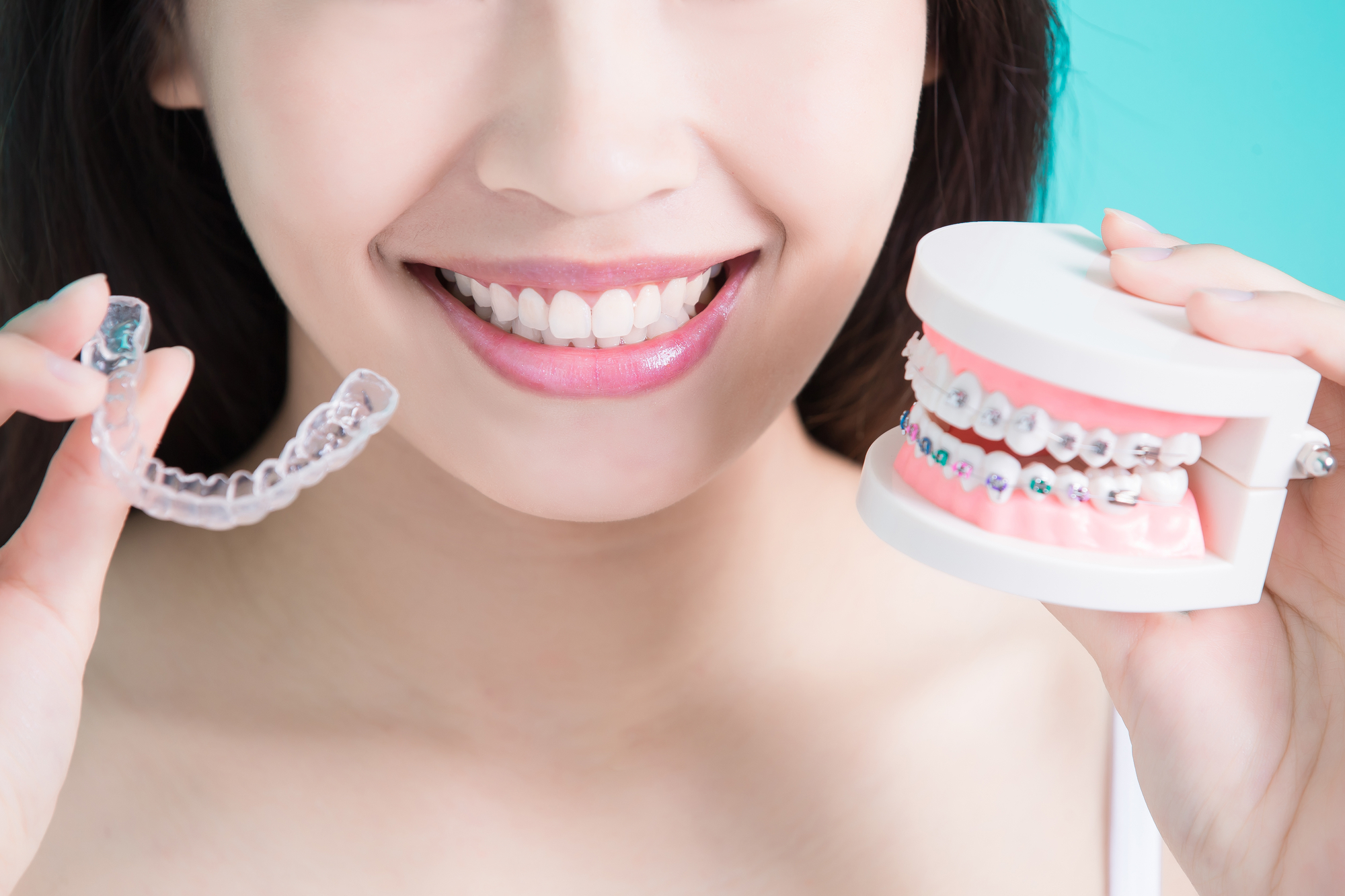Clear braces alternative (invisalign) vs braces